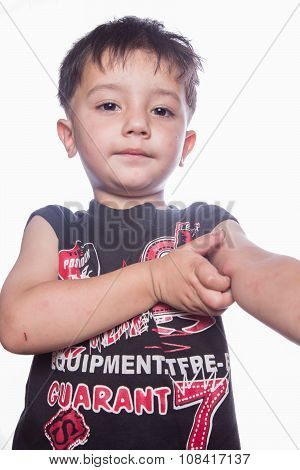 Boy with multiple mosquito bites on face and arm