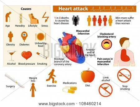 Heart Attack Infographic