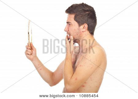 Man With Chickenpox Looking In Mirror