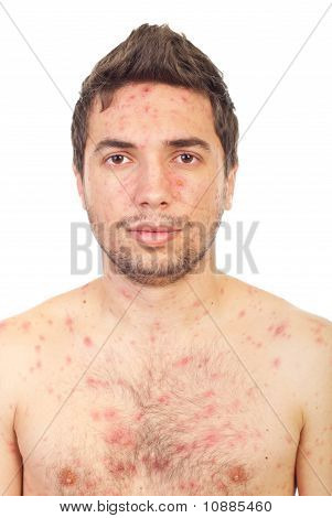 Close Up Man With Chickenpox