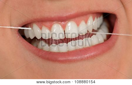 Dental String