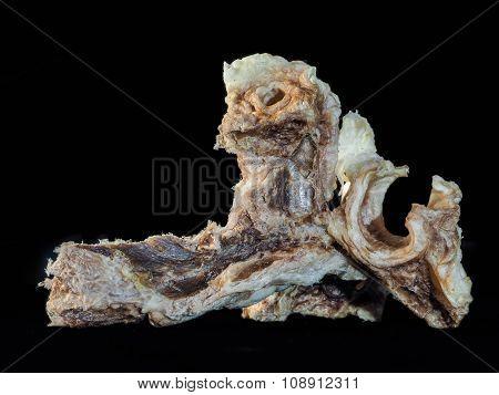 Unusual stuff, like old bone