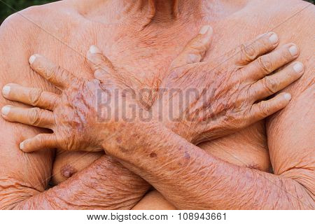 Closeup Asian Senior Man Chest With Texture Of Two Brown Wrinkle Hands