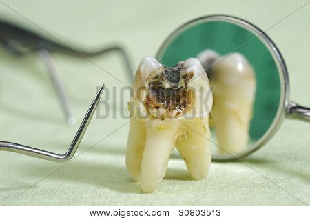 tooth with cavities