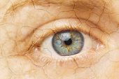 Cracked Skin. Closeup Of A Female Eye With Cracked Skin. Aging Process Or Pain And Loneliness Concep poster