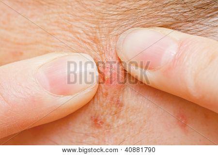 Acne Squeezing