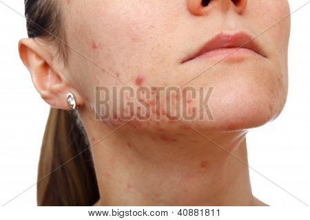 Young Girl With Skin Problem