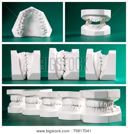Compilation picture of dental study models