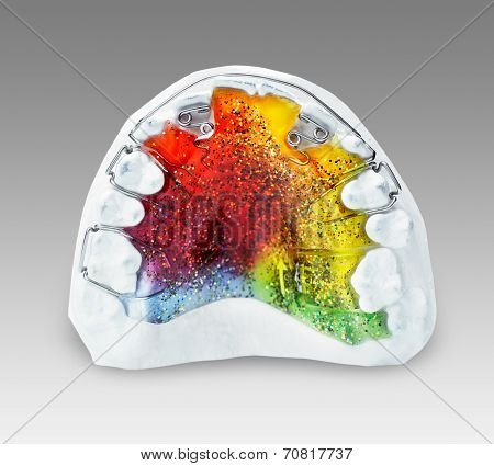 Multicolored and glittered orthodontic appliance for a child