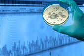 pic of chromatography  - colonies of pathogenic organisms in a petri dish - JPG