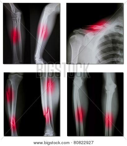 collection of x-ray (broken shoulder, broken legs)