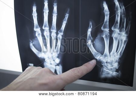 Medical Doctor Pointing At Radiograph X-ray Image