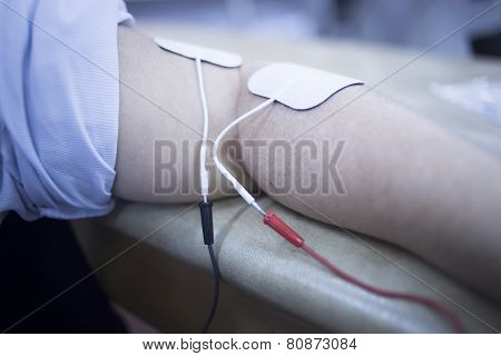 Patient Arm Physiotherapy Rehabiliation From Injury
