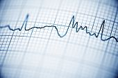 foto of electrocardiogram  - Close up of an electrocardiogram in paper form - JPG