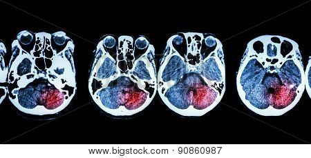 Stroke  ( Ct Scan Of Brain And Base Of Skull And Stroke )