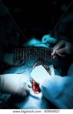 Job Surgeons During Open-heart Surgery