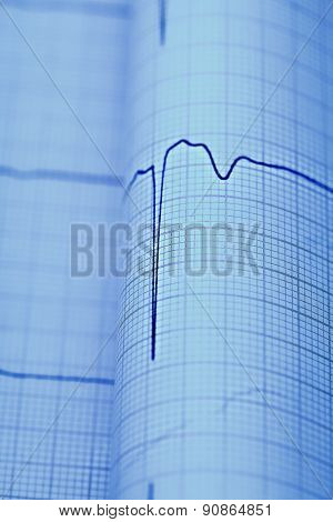 Ecg Macro As A Medical Diagnostic Concepts