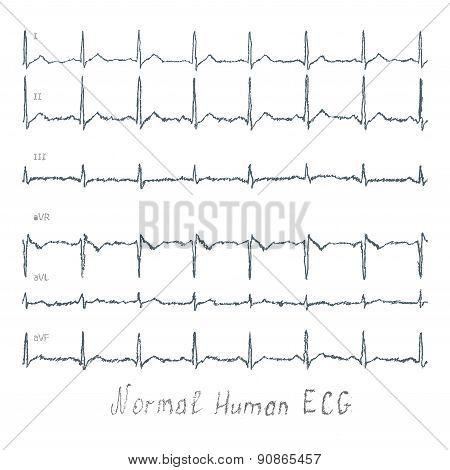 Normal Ecg Human Illustration