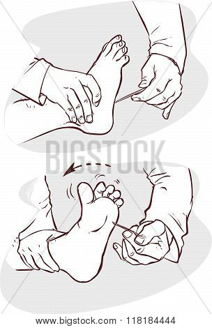 White Background Vector Illustration Of A Neurological Examination