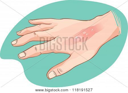 White Background Vector Illustration Of A  Hand Burn