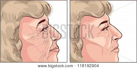 White Background Vector Illustration Of A  Face Wrinkles