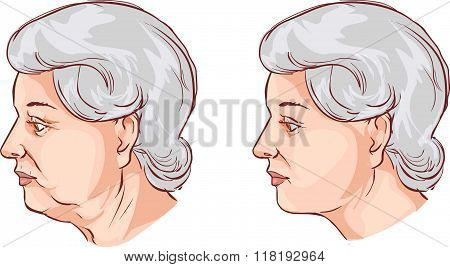 Vector Illustration Of A  Face Lift Before And After Treatment