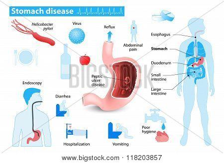 Stomach Disease