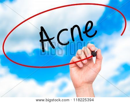 Man Hand Writing Acne With Black Marker On Visual Screen
