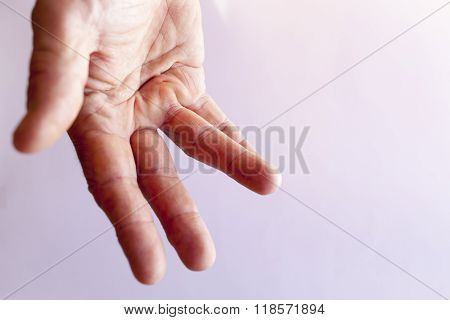 Hand of an man with Dupuytren contracture