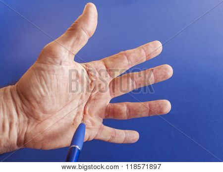 Hand of an man with Dupuytren contracture on blue