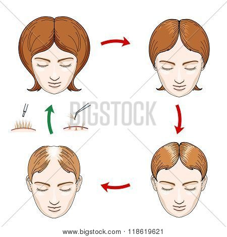 Female hair loss and transplantation icons