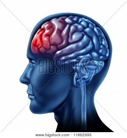 Head ache brain with x-ray chart.