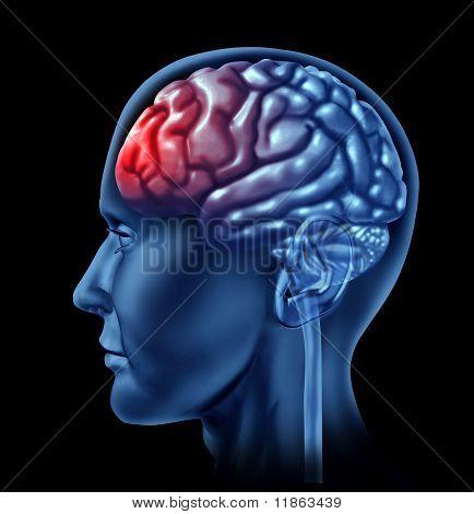 Símbolo del dolor de cerebro humano con la cabeza roja.