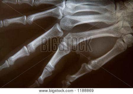 Radiografia da mão