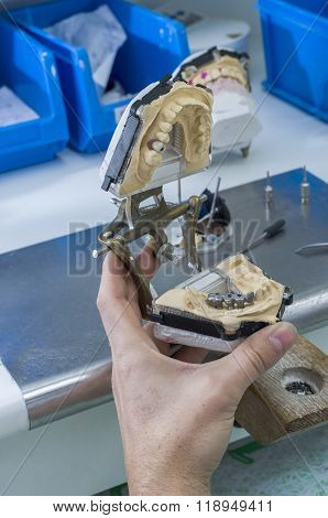 Technician Working With Articulator In Metal Structure, Crown Or Bridge.
