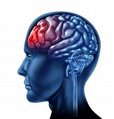 pic of pon  - Brain and Head ache pain represented by a red section - JPG