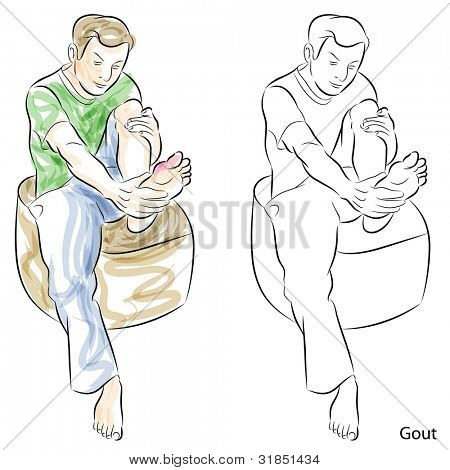 An image of a man massaging gout feet.