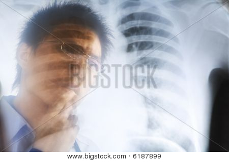 Asian Doctor Examining Xray Negative