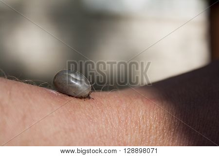 fed tick on human's hand closeup shot