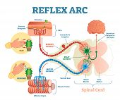 Spinal Reflex Arc Anatomical Scheme, Vector Illustration, With Spinal Cord, Stimulus Pathway To The  poster