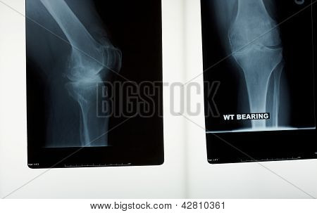 An X-ray Of A Knee Joint
