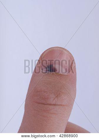 Subungual hematoma under nail
