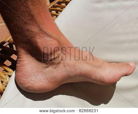 Hallux Foot