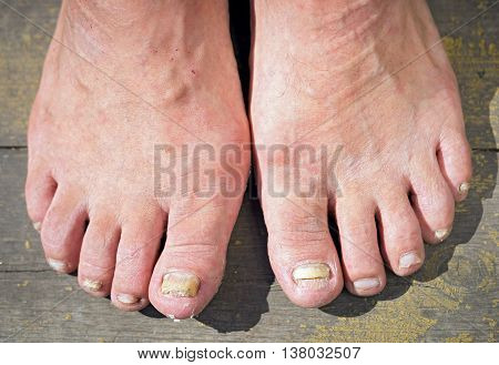 onychomycosis with fungal nail infection two feet