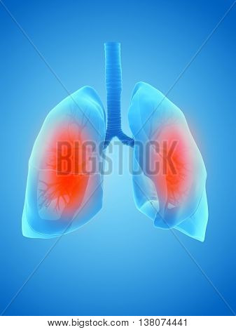 3d rendered illustration of an inflamed lung