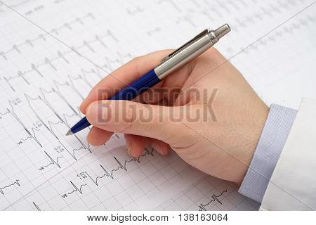 Close Up Of A Hand Doctor On A Electrocardiogram Paper