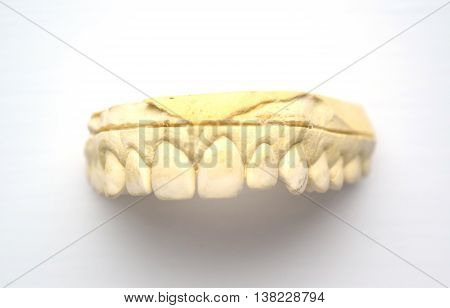Plaster impression of teeth with small gap in front teeth (diastema) - isolated