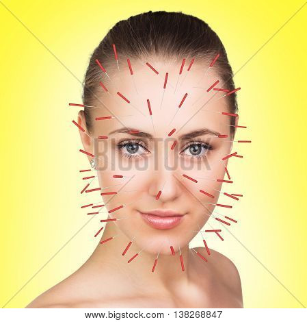 Closeup of performing acupuncture therapy on face over yellow background