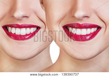 Red lips of young woman before and after filler injections