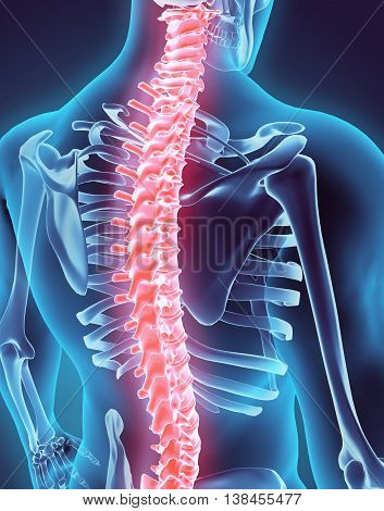 3D Illustration Of Spine, Medical Concept.